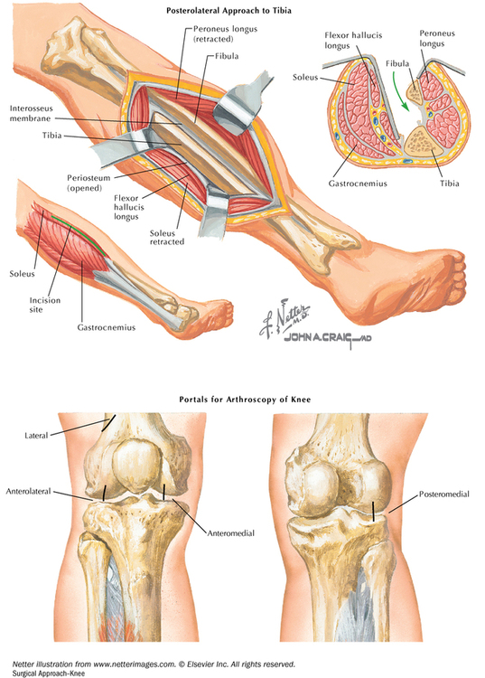 Musculoskeletal system   Basicmedical Key