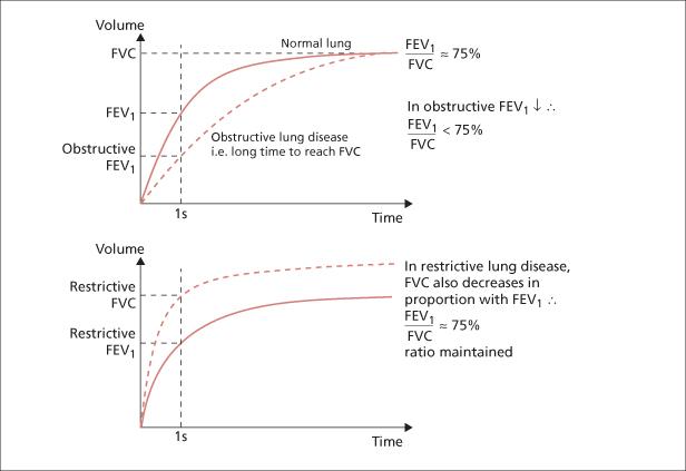 Measuring Peak Expiratory Flow Rate Basicmedical Key