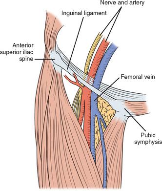 Central Vein Catheterization Basicmedical Key