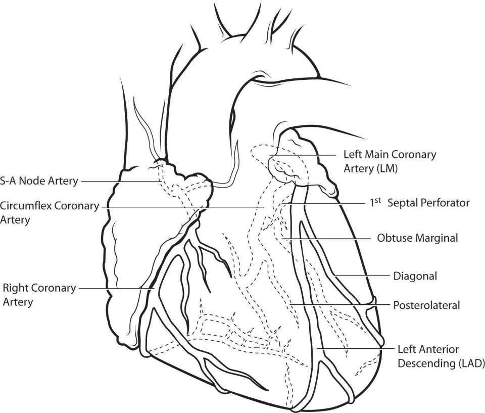 Cardiothoracic Surgery: Diseases Of The Heart, Great Vessels, And ...