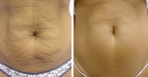 weight-loss-tighten-skin