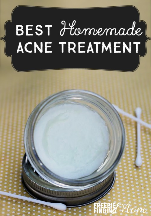best-homemade-acne-treatment-pin