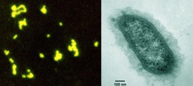 Methanobrevibacter-smithii