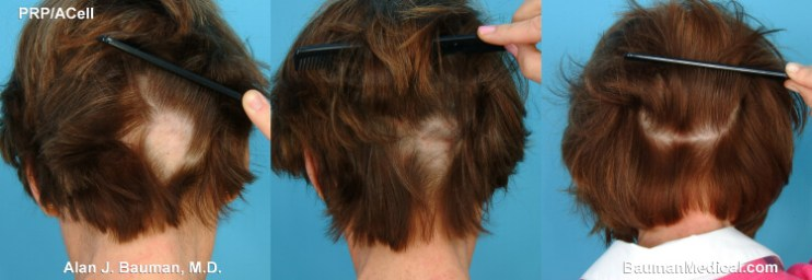 alopecia areata in women chart