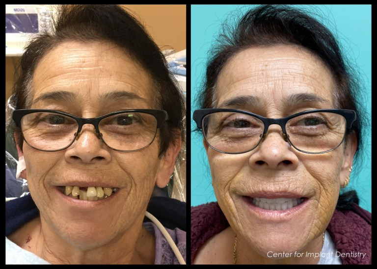 full-face-before-and-after2