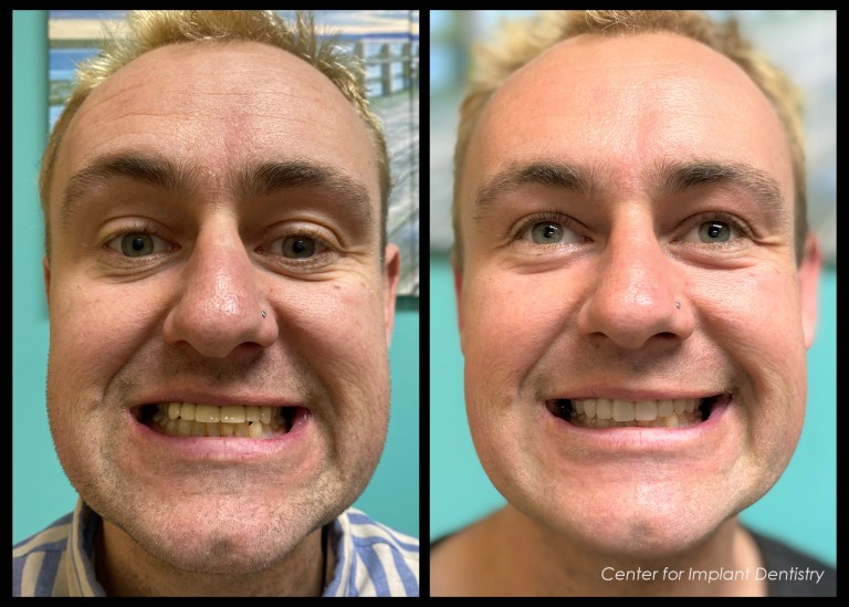 full-face-before-and-after