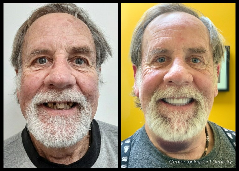 full-face-before-and-after8