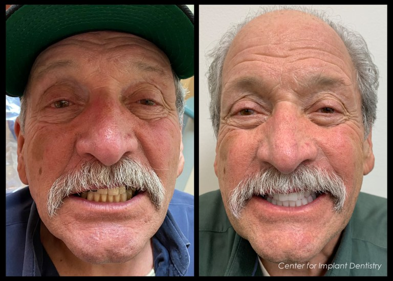 full-face-before-and-after6