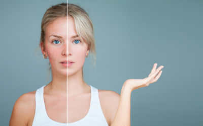 Why Teen Acne and Adult Acne Cannot Be Treated the Same