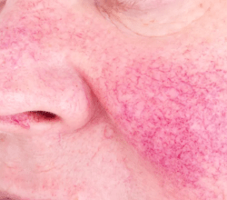 Living with Rosacea: Treatments to Reduce Symptoms