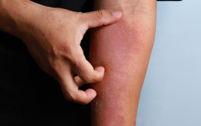 Eczema: Do You Know About It? This Month is Eczema Awareness Month
