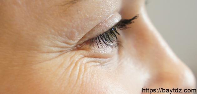 طريقة لإزالة تجاعيد حول العينين