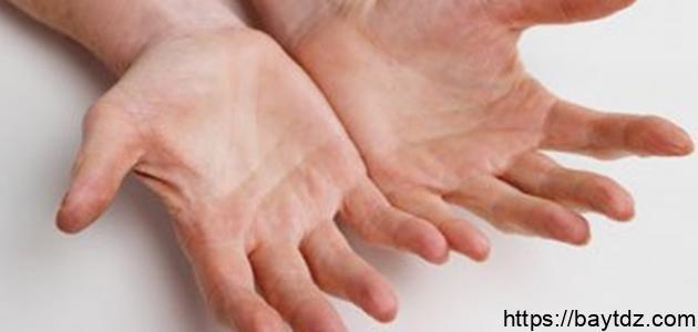 علاج فطريات اليد