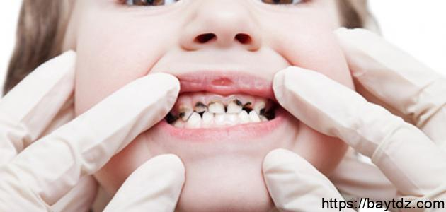 ما هو سبب تسوس الأسنان
