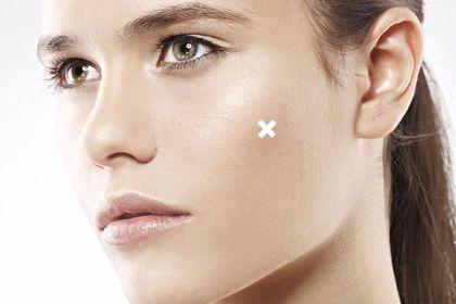 acne solutions clinique spot healing treament gel