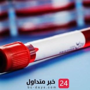 الصحة: تحذر من تجاهل فحص ما قبل الزواج وتضرب مثلًا بأمراض الدم