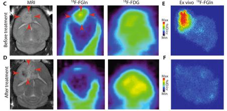 Glutamine-based PET imaging facilitates enhanced metabolic evaluation of gliomas in vivo