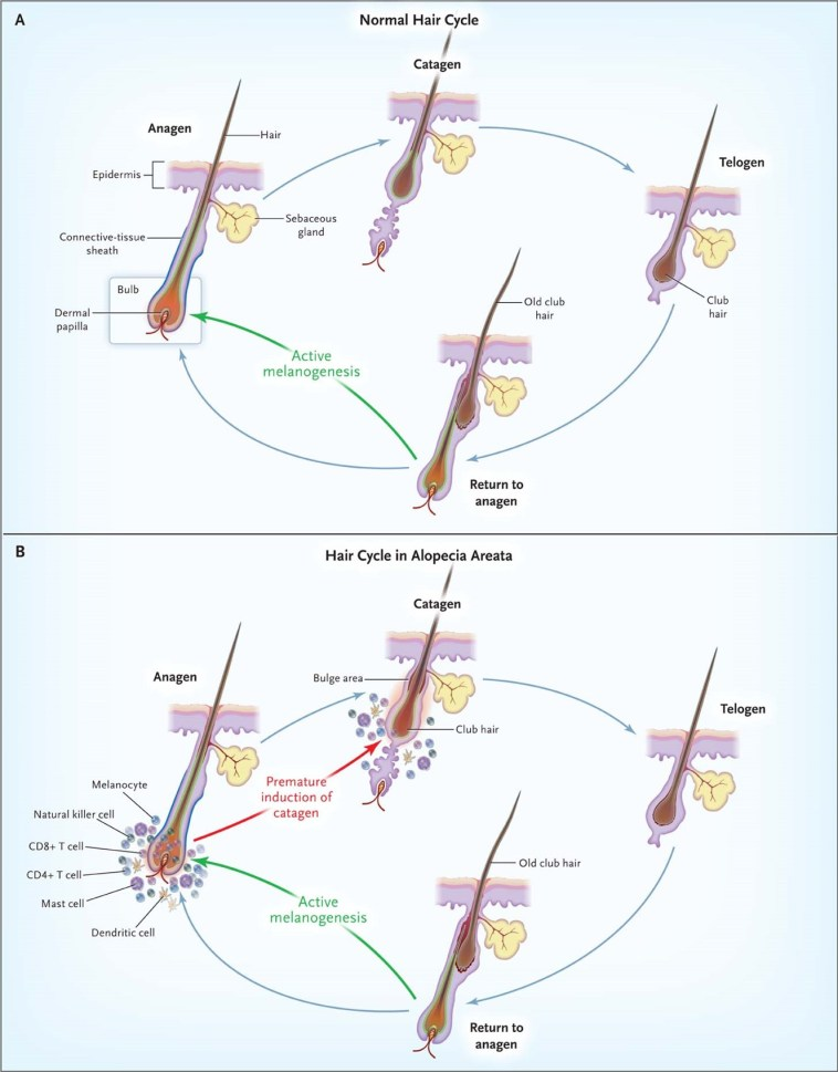 Figure 2: Visual summary of the growth cycle of a normal hair follicle and the hair follicle of an AA patient. (source:  Gilhar A et al. N Engl J Med 2012;366:1515-1525)