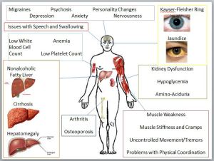 This figure displays the majority of the symptoms associated with Wilson's Disease and the organ from which the symptom originates (Original Composite Figure, Images used are from Google Images)