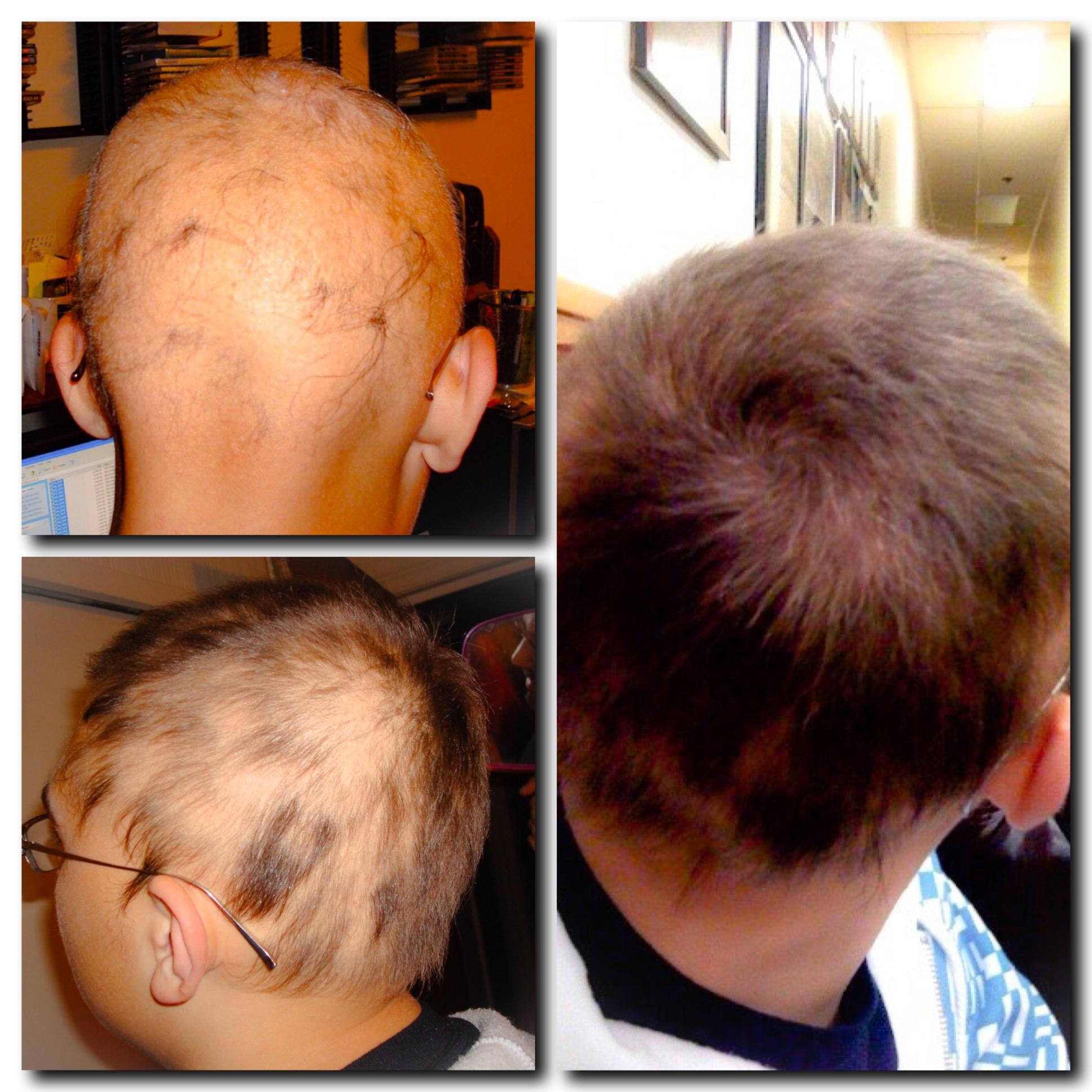 Како смањити губитак косе