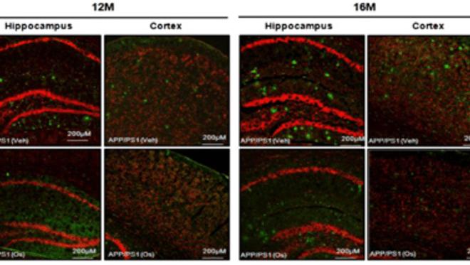 Osmotin as a Novel Drug for the Prevention of Alzheimer's Disease