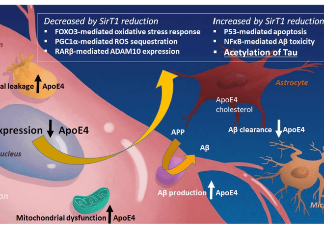 SB #2 – A New Insight into Treating Alzheimer's Disease