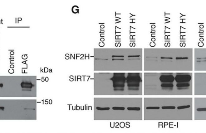 Don't get old: SIRT7 guards against cellular senescence