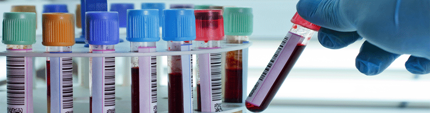 Blood samples 2 - front page