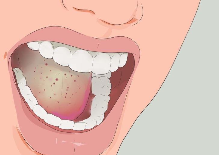 Αποτέλεσμα εικόνας για άφθα στο στόμα