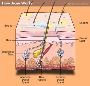 acne-sebum
