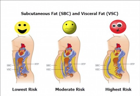Visceral Fat Versus Subcutaneous Fat