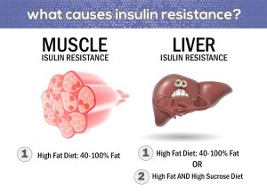 muscle liver insulin resistance