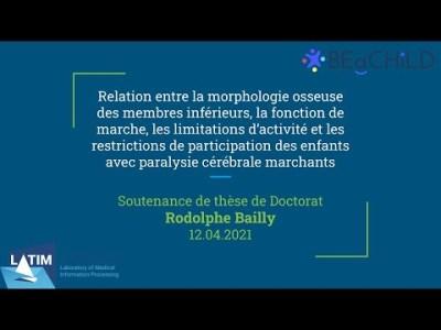 Morphologie osseuse des membres inférieurs et paralysie cérébrale. Défense de Thèse Rodolphe Bailly