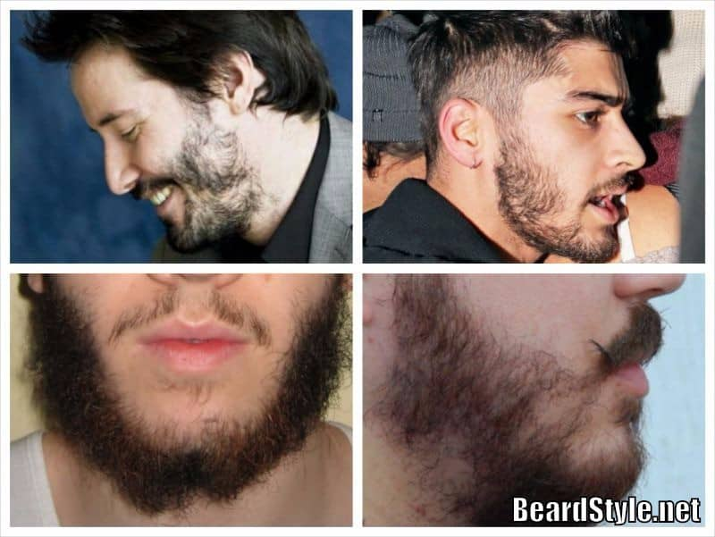 patchy-beard-photo