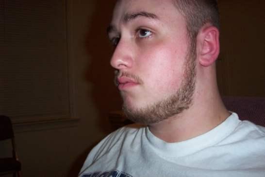 Bald Men 22