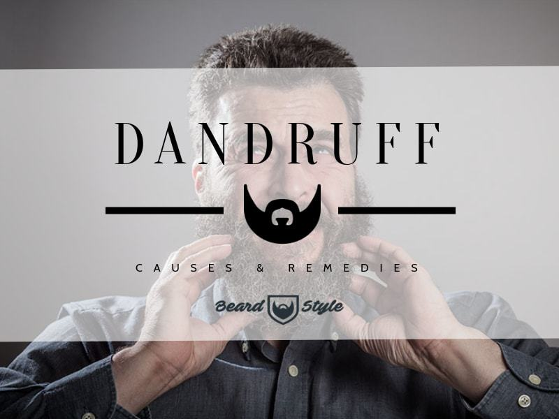 beard dandruff causes and how to get rid of it