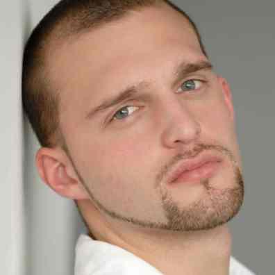 Patchy Beard 2