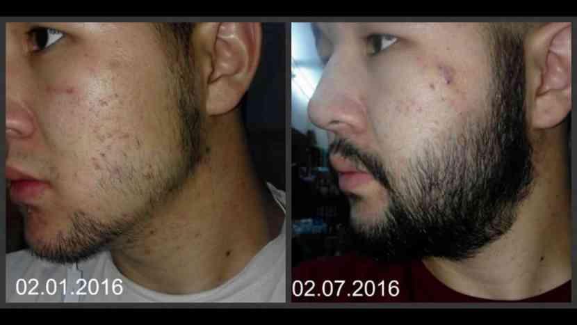 minoxidil beard after 6 month