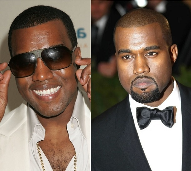 Kanye West with and without beard