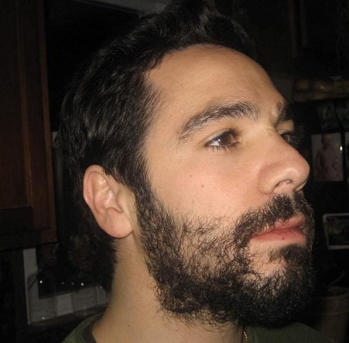 growing uneven beard