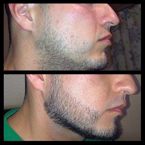 minoxidil for beard