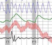 Polygraph Chart