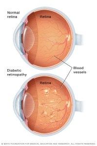 Illustration comparing good eye to eye with diabetic retinopathy