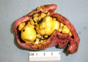 Gallstone Pancreatitis