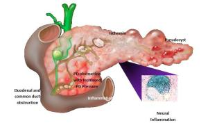 Damaged-Pancreas