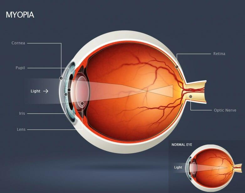 Understanding Myopia Or Nearsightedness Beaumont Vision
