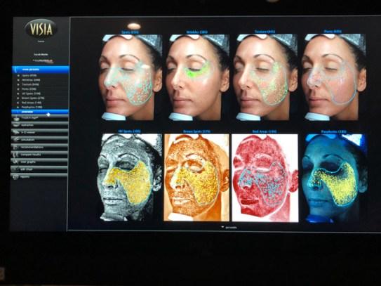 Scan at Liv Skin Med Spa