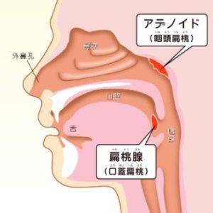 アデノイド顔貌は口臭がきつくなる原因!|口呼吸を治す対策と対処法 | beautifulメモ