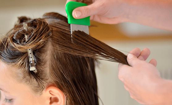 How to Use Oil Comb and Wet Comb to Get Rid of Head Lice