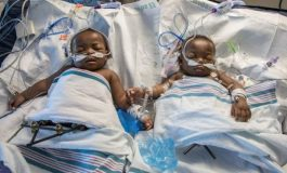 Conjoined Ayeni Twins Successfully Separated in U.S After 18-hour Surgery